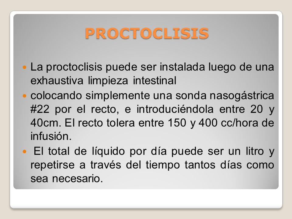 PROCTOCLISIS La proctoclisis puede ser instalada luego de una exhaustiva limpieza intestinal.