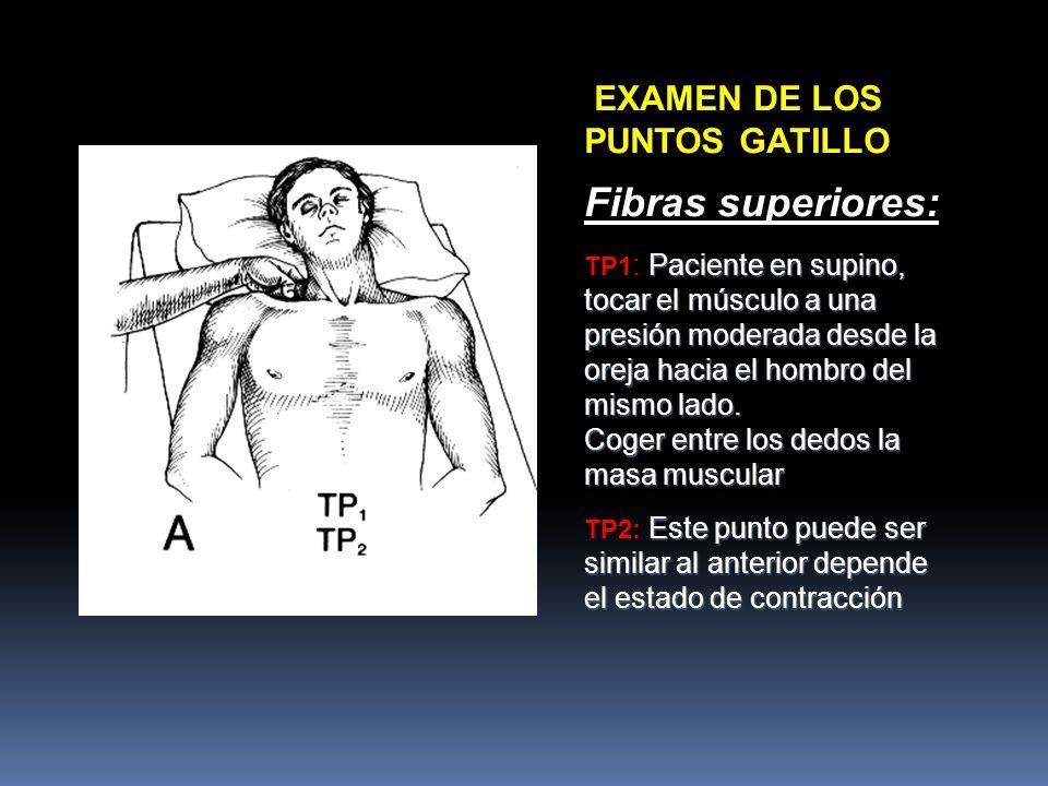 Fibras superiores: EXAMEN DE LOS PUNTOS GATILLO