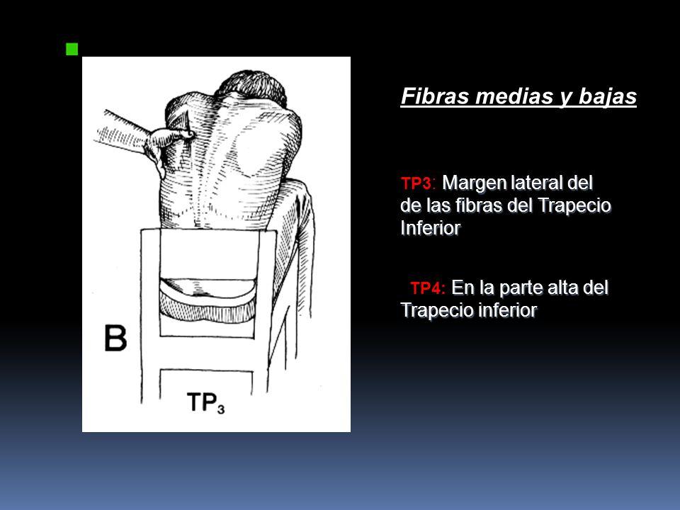 Fibras medias y bajas TP3: Margen lateral del de las fibras del Trapecio Inferior.