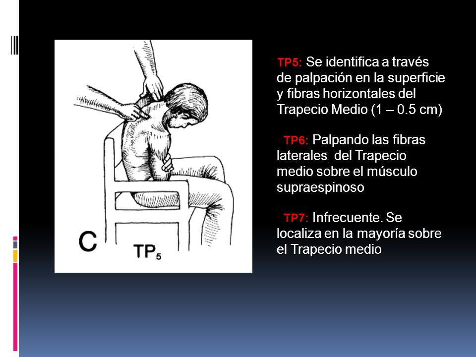 TP5: Se identifica a través de palpación en la superficie y fibras horizontales del Trapecio Medio (1 – 0.5 cm)