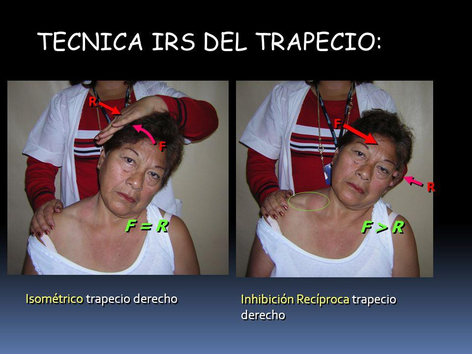 TECNICA IRS DEL TRAPECIO: