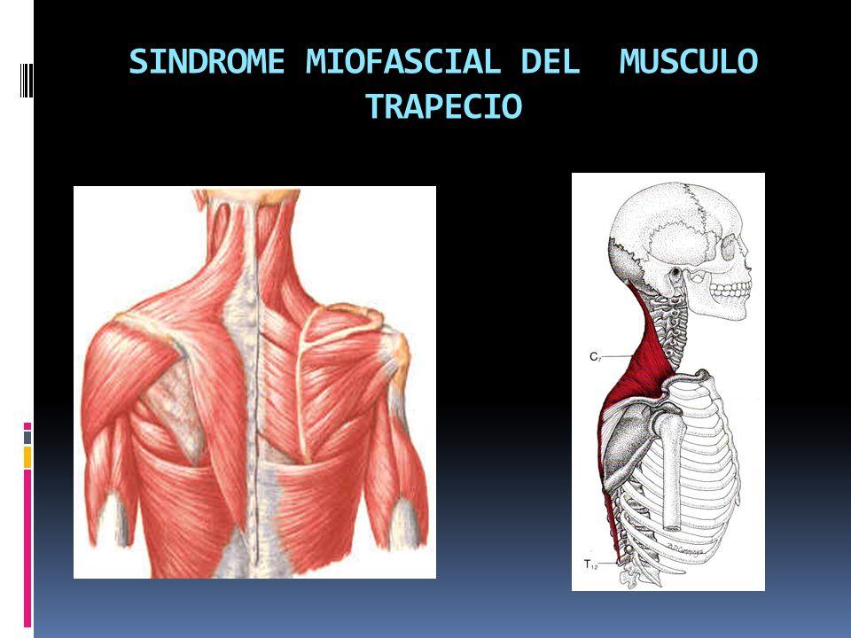 SINDROME MIOFASCIAL DEL MUSCULO TRAPECIO