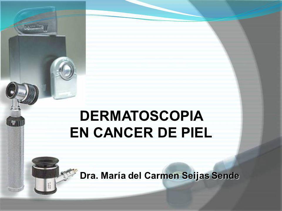 DERMATOSCOPIA EN CANCER DE PIEL