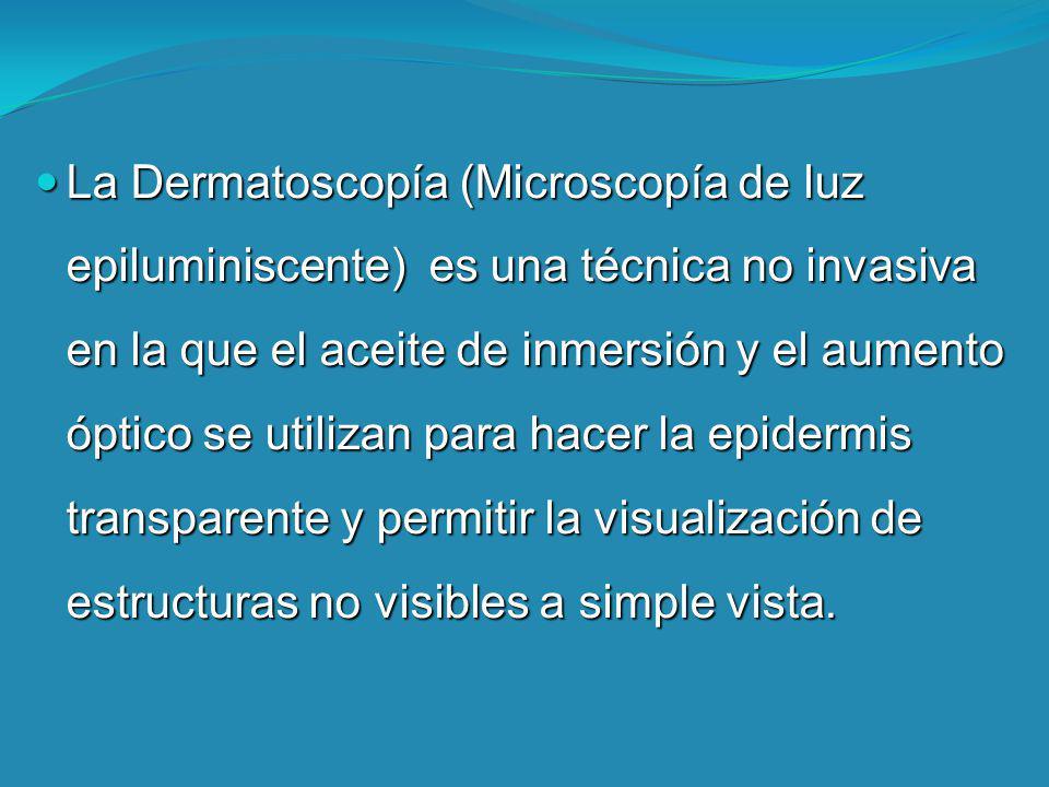 La Dermatoscopía (Microscopía de luz epiluminiscente) es una técnica no invasiva en la que el aceite de inmersión y el aumento óptico se utilizan para hacer la epidermis transparente y permitir la visualización de estructuras no visibles a simple vista.