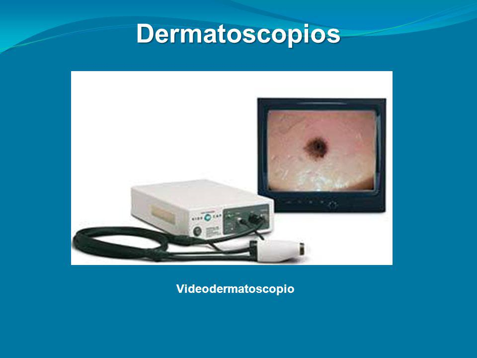 Dermatoscopios Videodermatoscopio
