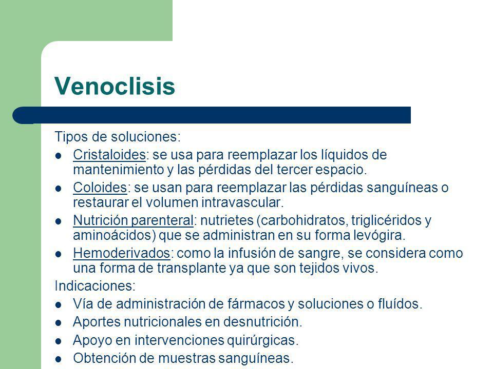 Venoclisis Tipos de soluciones: