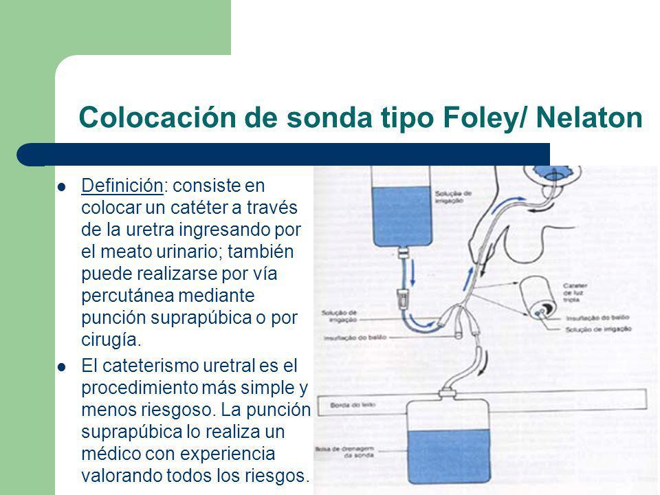 Colocación de sonda tipo Foley/ Nelaton