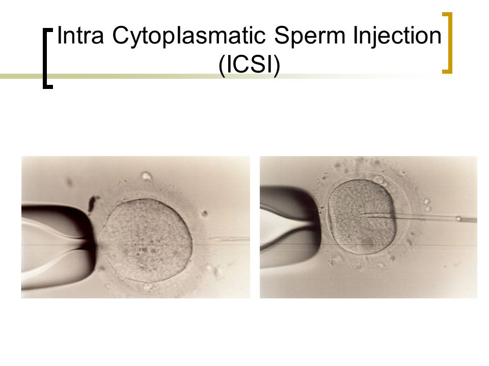 Intra CytopIasmatic Sperm Injection (ICSI)