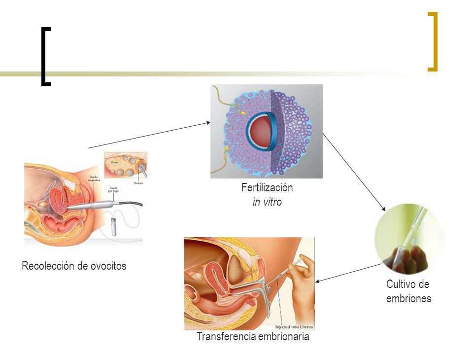 Fertilización in vitro Recolección de ovocitos Cultivo de embriones Transferencia embrionaria