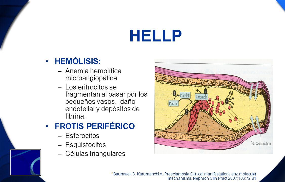 HELLP HEMÓLISIS: FROTIS PERIFÉRICO Anemia hemolítica microangiopática