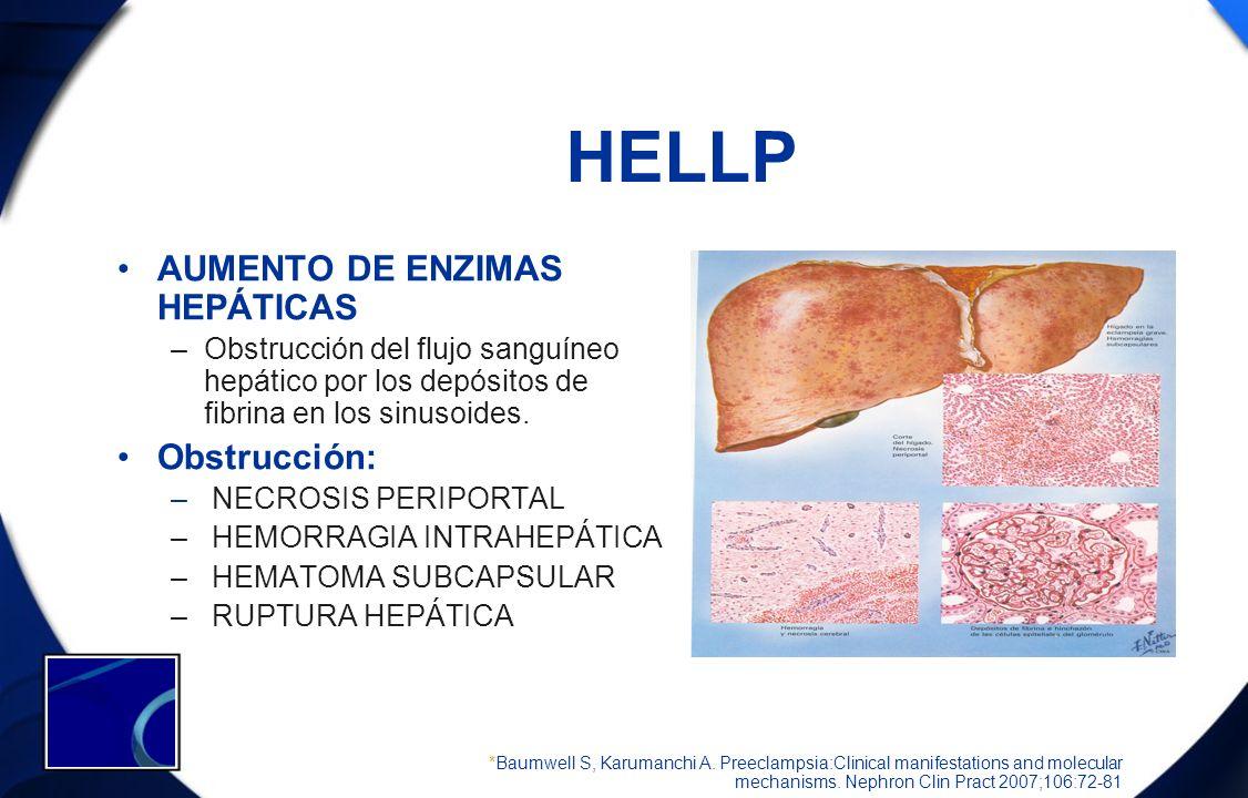 HELLP AUMENTO DE ENZIMAS HEPÁTICAS Obstrucción:
