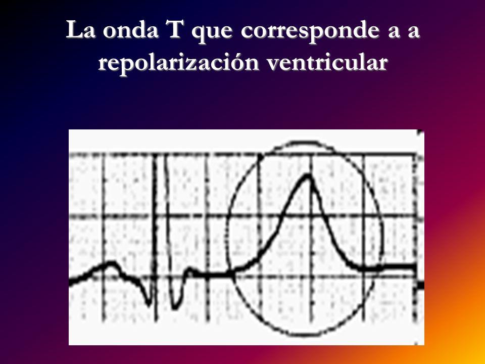 La onda T que corresponde a a repolarización ventricular
