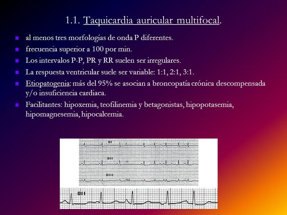 1.1. Taquicardia auricular multifocal.