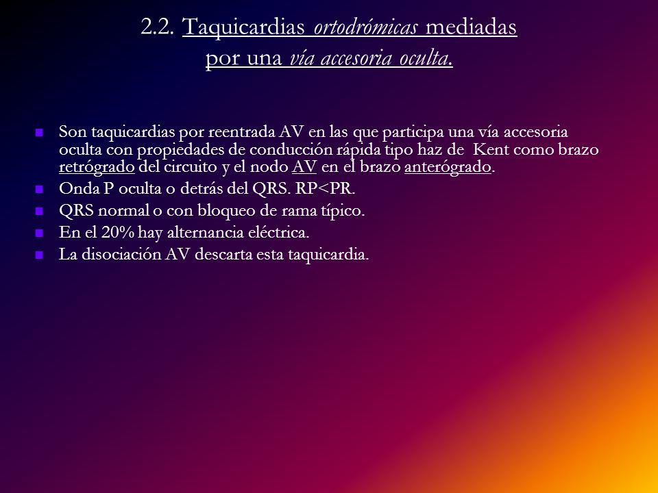 2.2. Taquicardias ortodrómicas mediadas por una vía accesoria oculta.