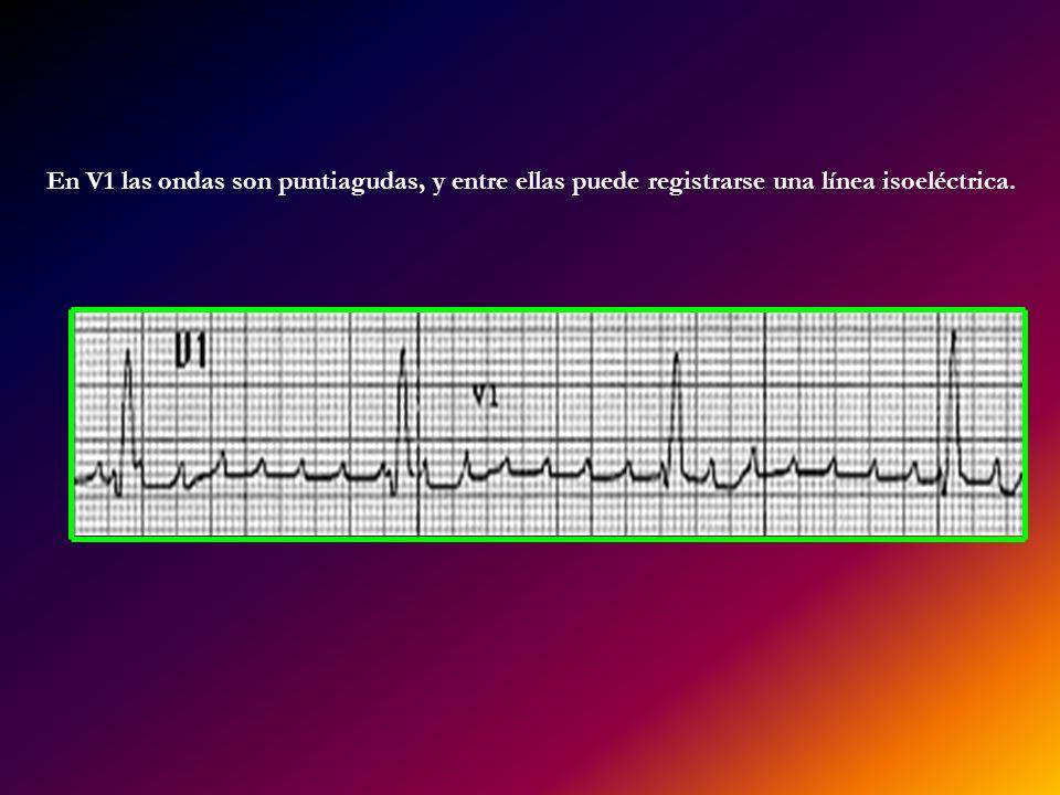En V1 las ondas son puntiagudas, y entre ellas puede registrarse una línea isoeléctrica.