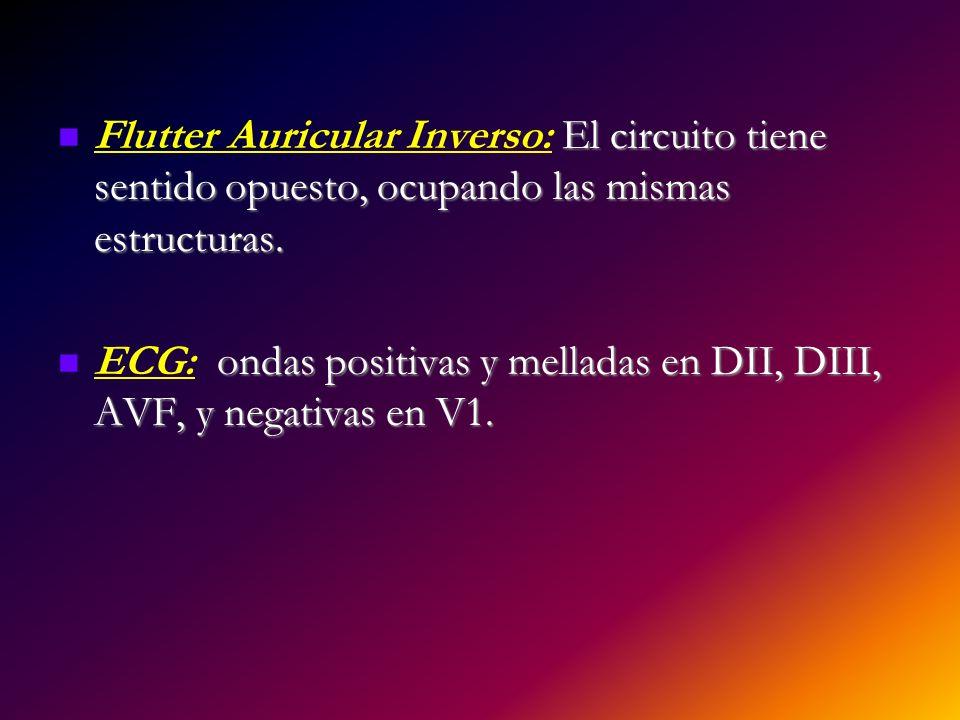 Flutter Auricular Inverso: El circuito tiene sentido opuesto, ocupando las mismas estructuras.