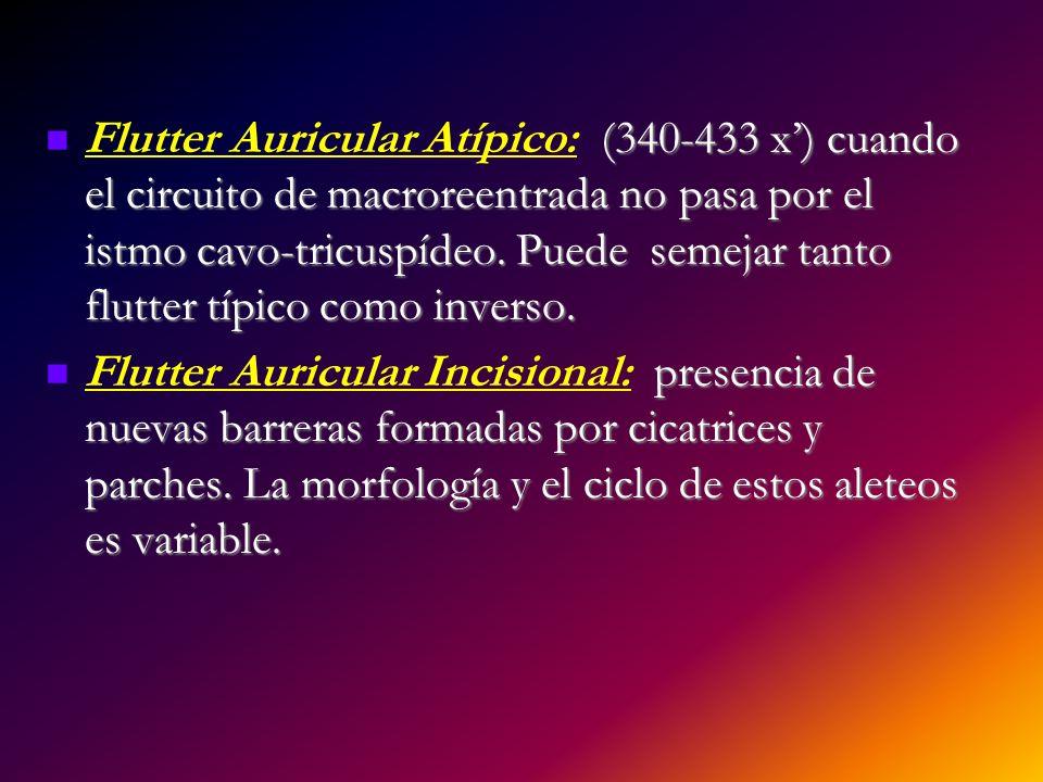 Flutter Auricular Atípico: (340-433 x') cuando el circuito de macroreentrada no pasa por el istmo cavo-tricuspídeo. Puede semejar tanto flutter típico como inverso.
