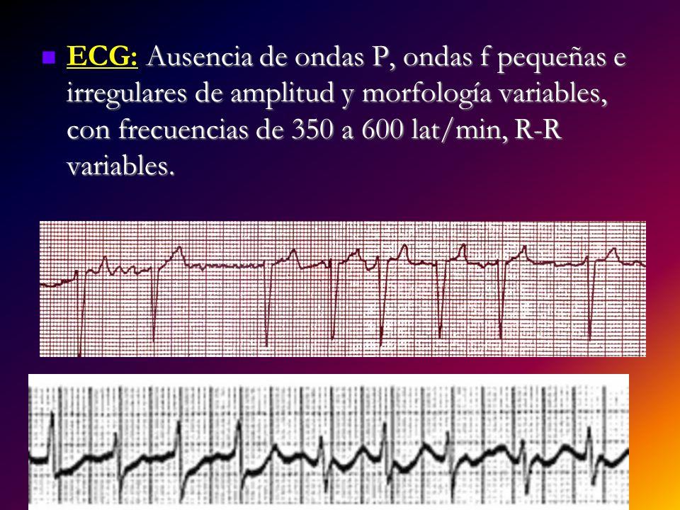 ECG: Ausencia de ondas P, ondas f pequeñas e irregulares de amplitud y morfología variables, con frecuencias de 350 a 600 lat/min, R-R variables.