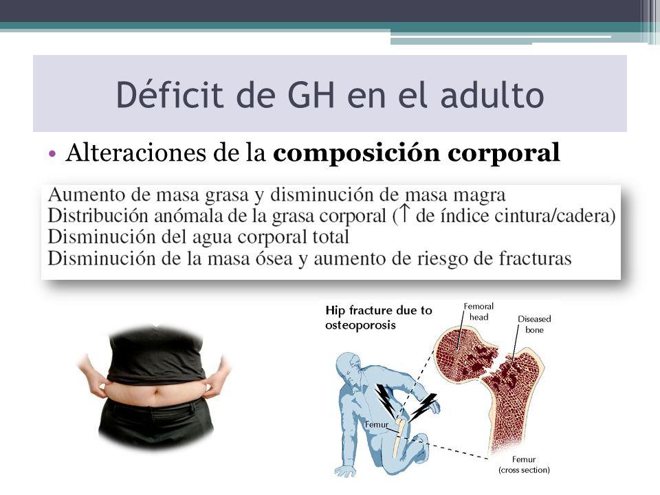 Déficit de GH en el adulto