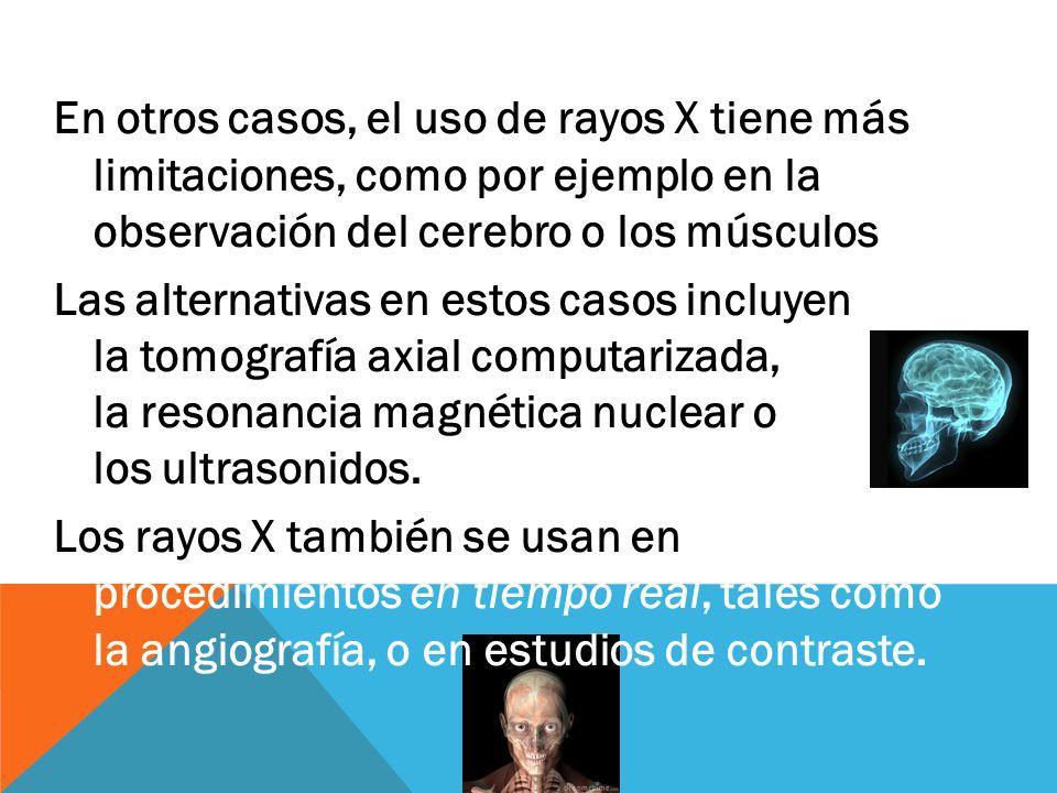 En otros casos, el uso de rayos X tiene más limitaciones, como por ejemplo en la observación del cerebro o los músculos Las alternativas en estos casos incluyen la tomografía axial computarizada, la resonancia magnética nuclear o los ultrasonidos.