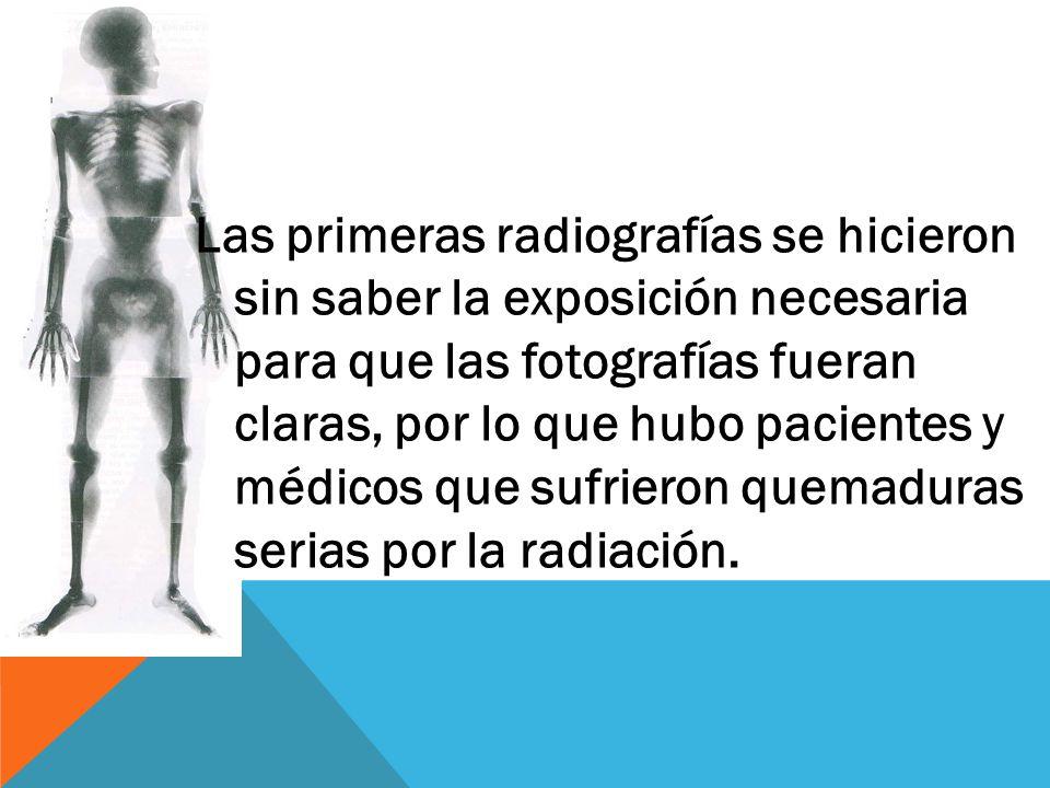 Las primeras radiografías se hicieron sin saber la exposición necesaria para que las fotografías fueran claras, por lo que hubo pacientes y médicos que sufrieron quemaduras serias por la radiación.