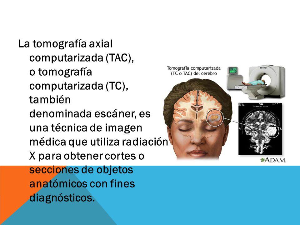 La tomografía axial computarizada (TAC), o tomografía computarizada (TC), también denominada escáner, es una técnica de imagen médica que utiliza radiación X para obtener cortes o secciones de objetos anatómicos con fines diagnósticos.