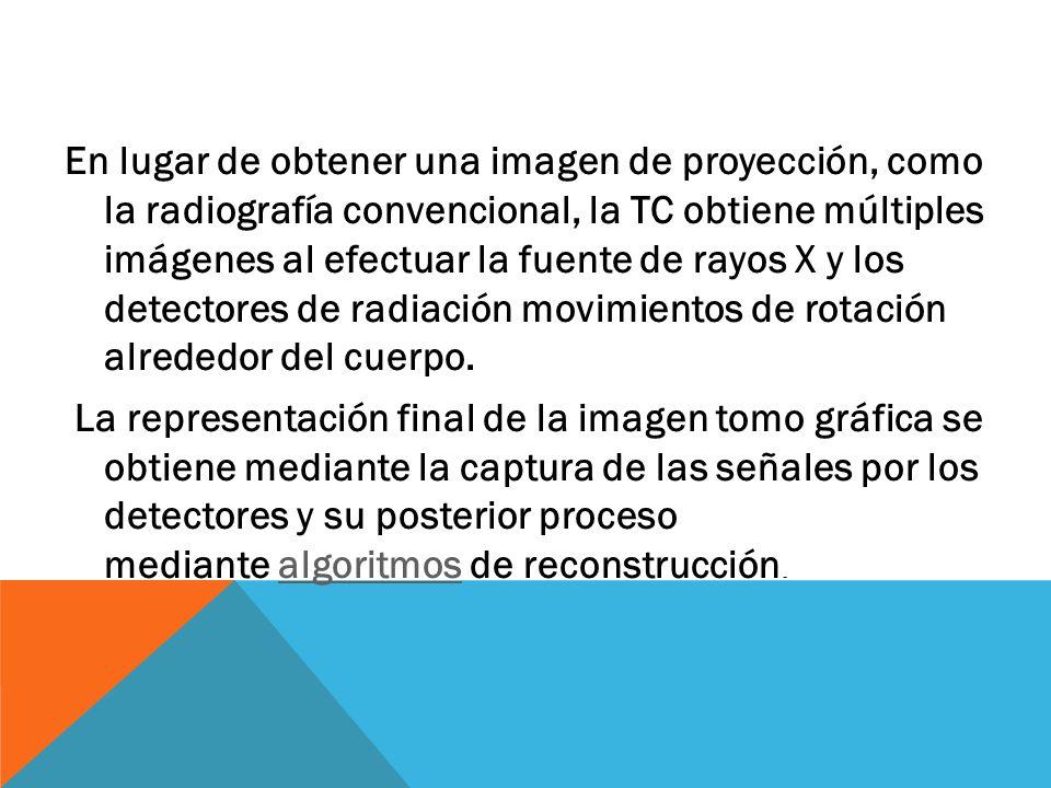 En lugar de obtener una imagen de proyección, como la radiografía convencional, la TC obtiene múltiples imágenes al efectuar la fuente de rayos X y los detectores de radiación movimientos de rotación alrededor del cuerpo.