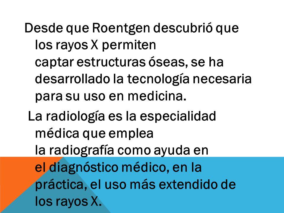 Desde que Roentgen descubrió que los rayos X permiten captar estructuras óseas, se ha desarrollado la tecnología necesaria para su uso en medicina.