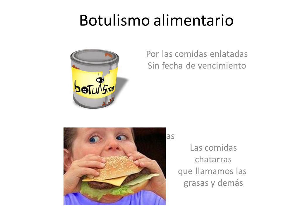 Botulismo alimentario
