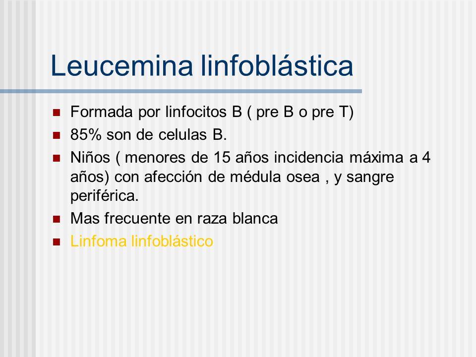 Leucemina linfoblástica