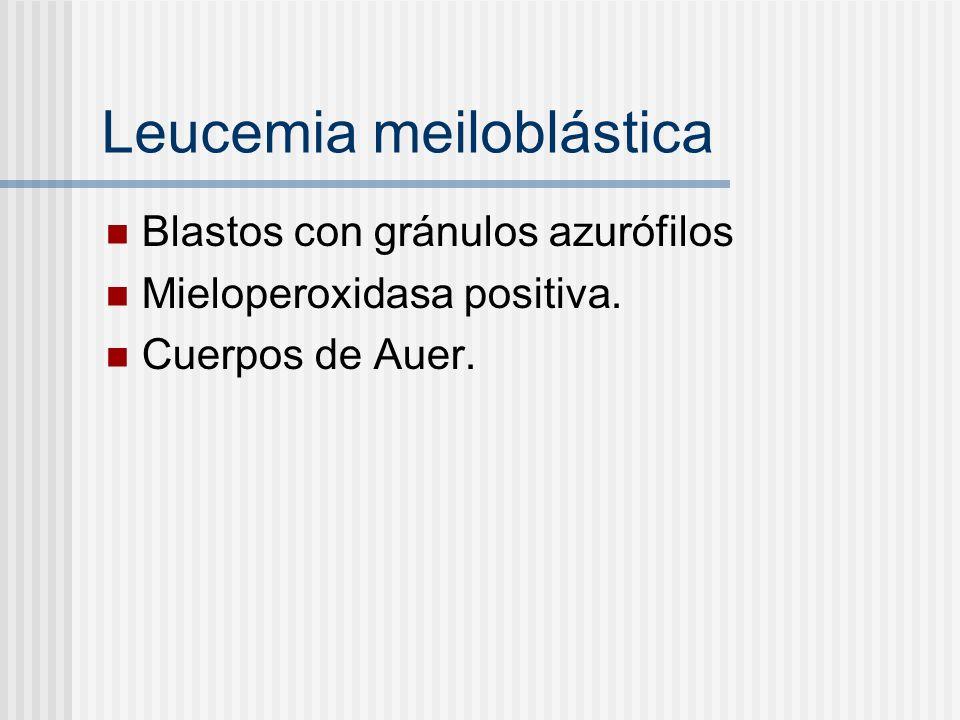 Leucemia meiloblástica