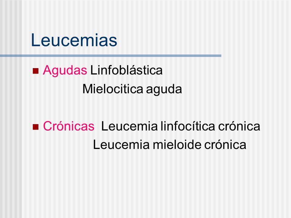 Leucemias Agudas Linfoblástica Mielocitica aguda