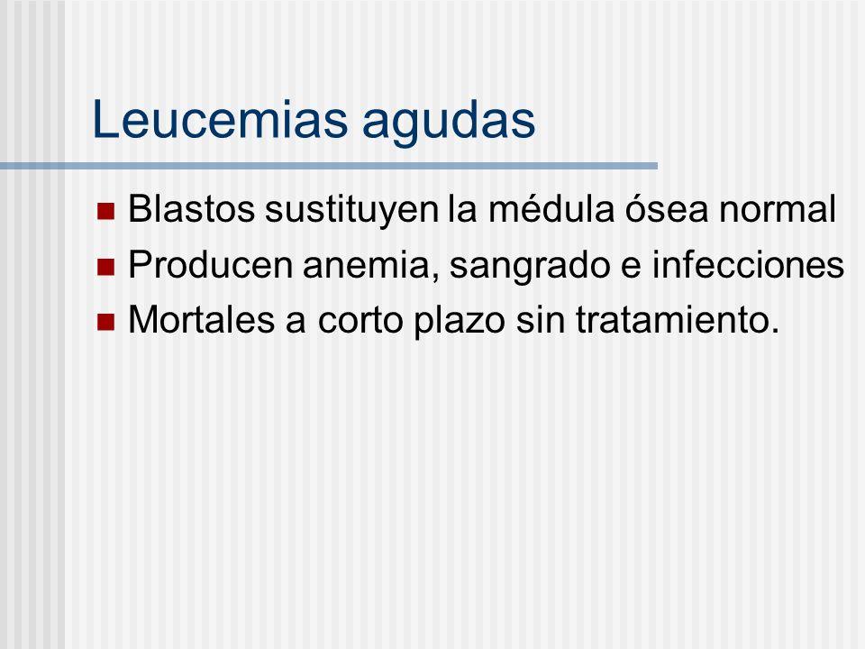 Leucemias agudas Blastos sustituyen la médula ósea normal