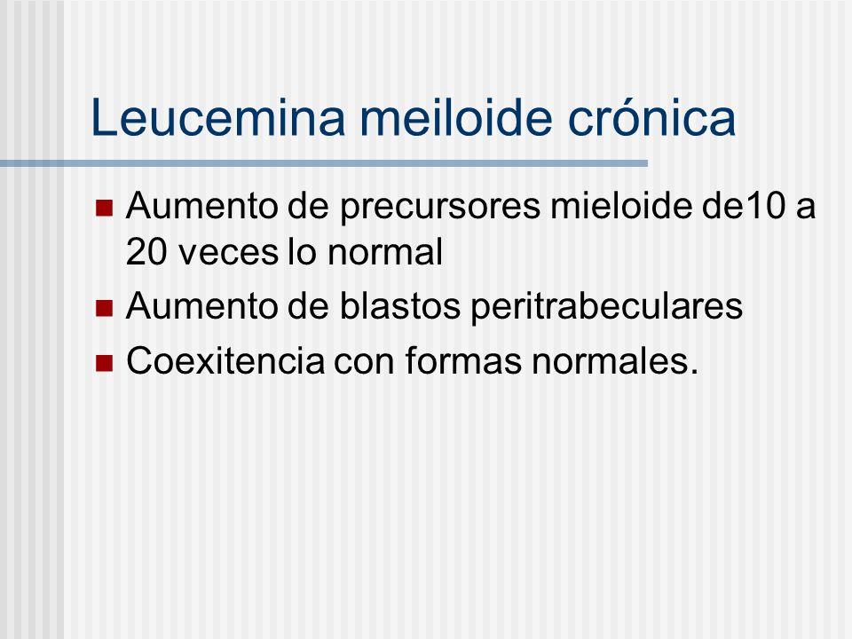 Leucemina meiloide crónica