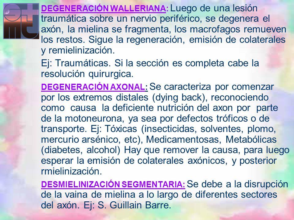 DEGENERACIÓN WALLERIANA: Luego de una lesión traumática sobre un nervio periférico, se degenera el axón, la mielina se fragmenta, los macrofagos remueven los restos. Sigue la regeneración, emisión de colaterales y remielinización.