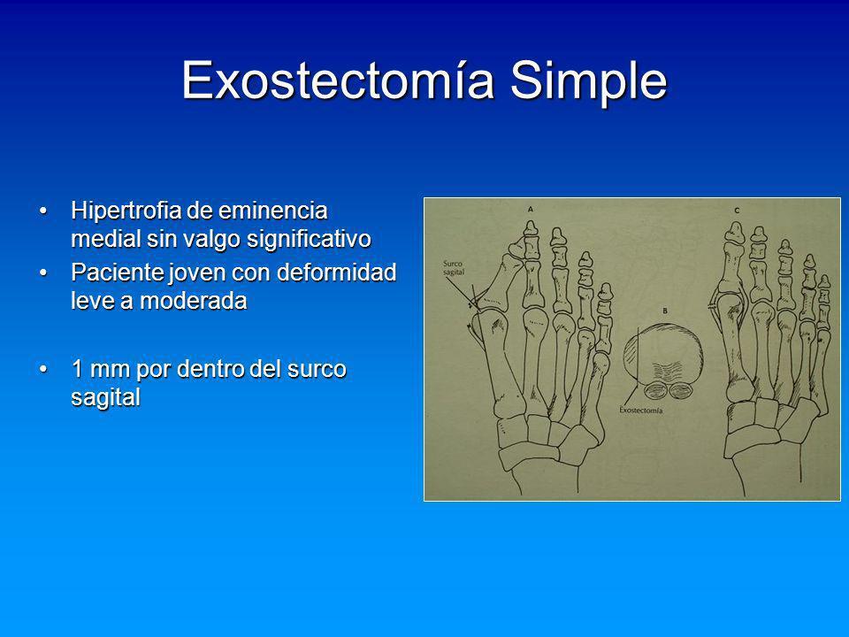 Exostectomía Simple Hipertrofia de eminencia medial sin valgo significativo. Paciente joven con deformidad leve a moderada.