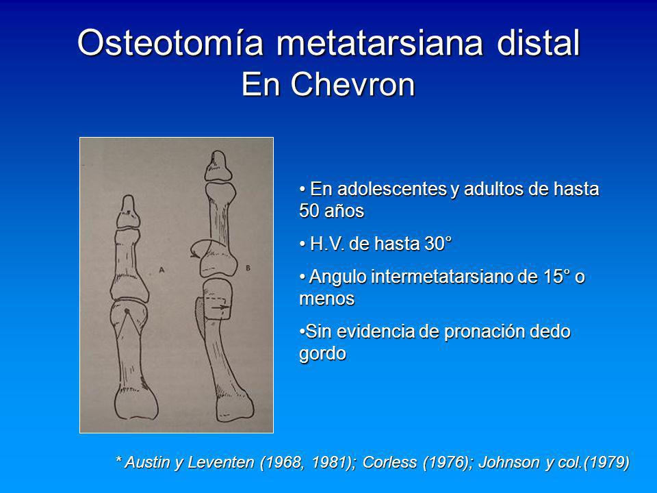 Osteotomía metatarsiana distal En Chevron