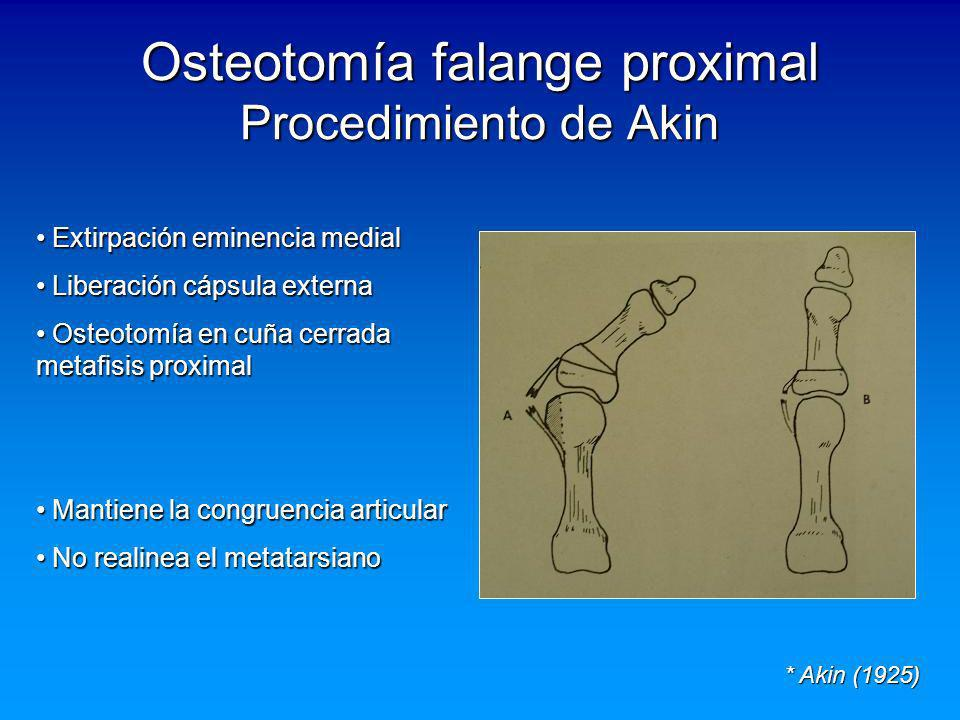 Osteotomía falange proximal Procedimiento de Akin