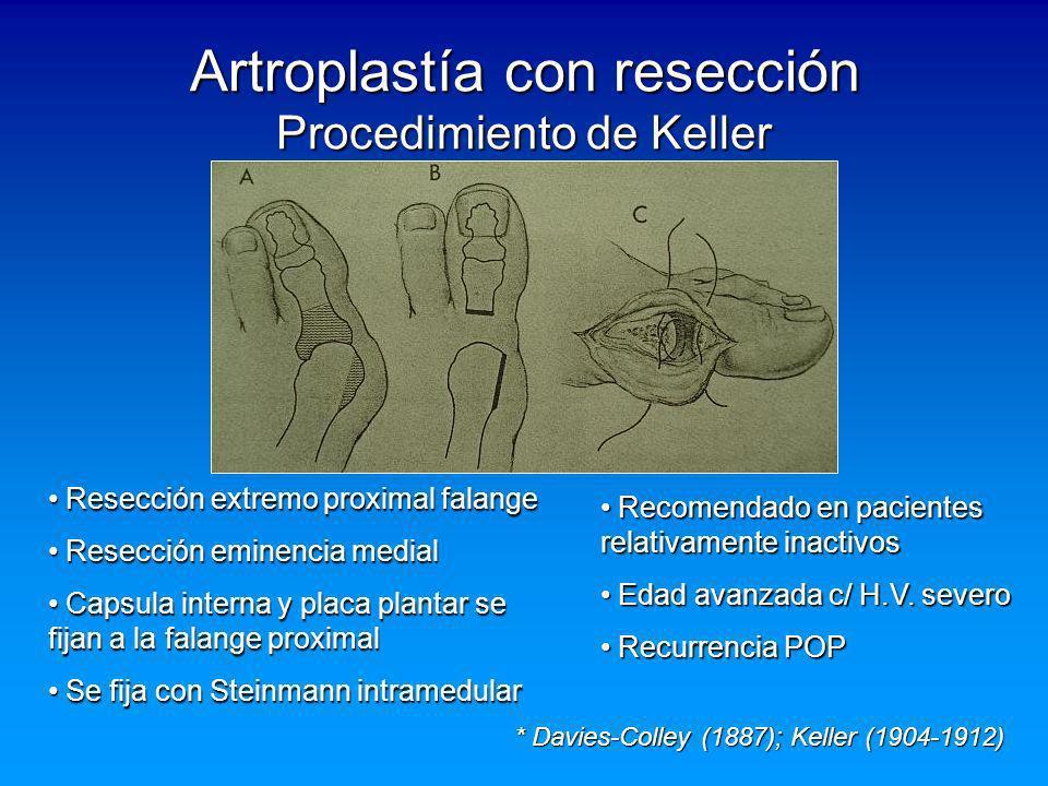 Artroplastía con resección Procedimiento de Keller
