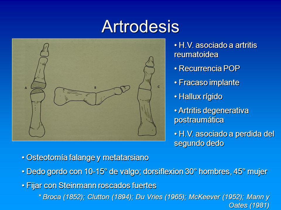 Artrodesis H.V. asociado a artritis reumatoidea Recurrencia POP