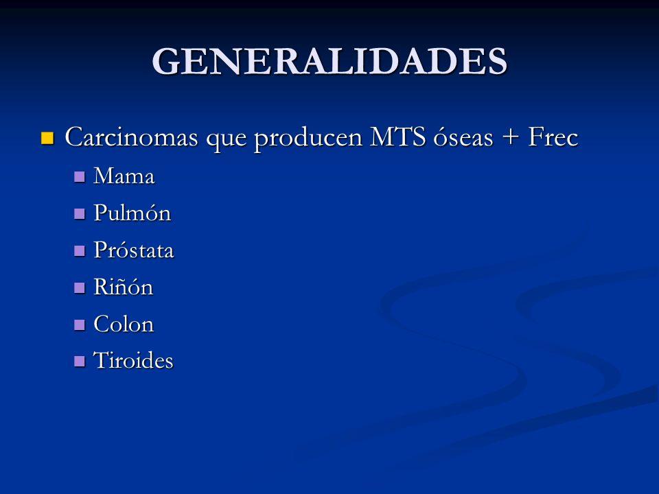 GENERALIDADES Carcinomas que producen MTS óseas + Frec Mama Pulmón
