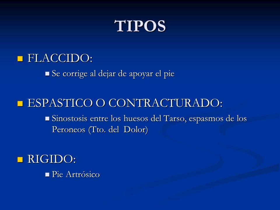 TIPOS FLACCIDO: ESPASTICO O CONTRACTURADO: RIGIDO: