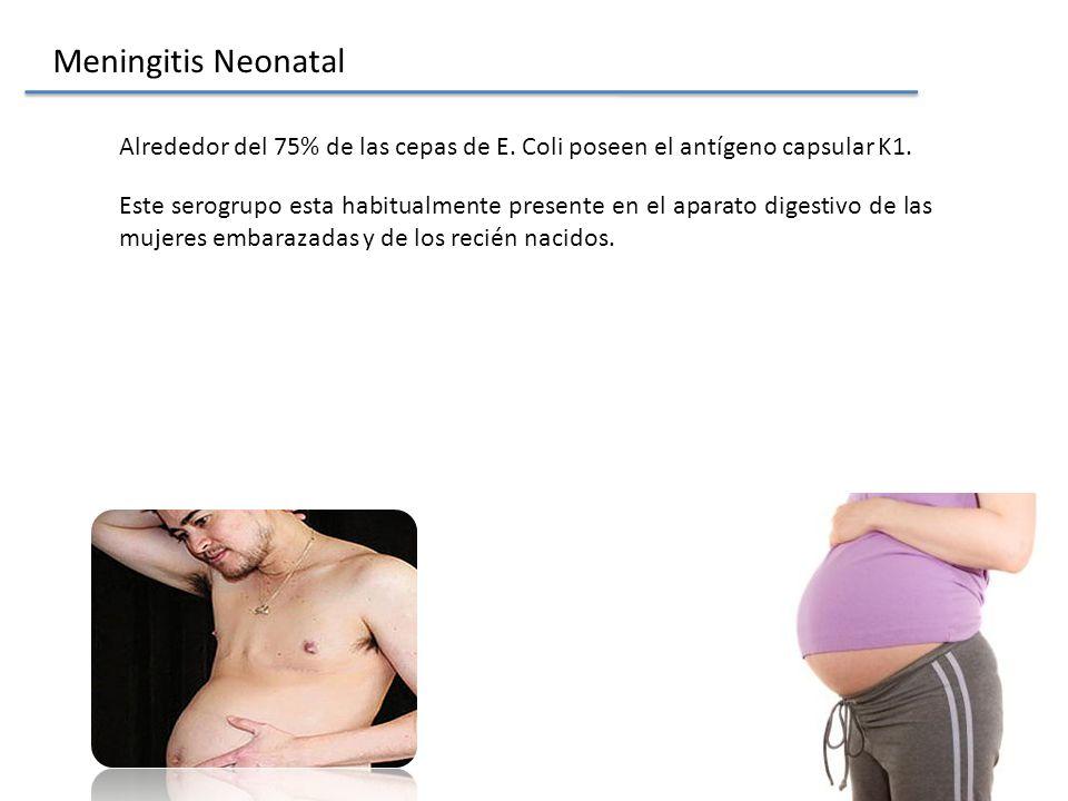 Meningitis Neonatal Alrededor del 75% de las cepas de E. Coli poseen el antígeno capsular K1.