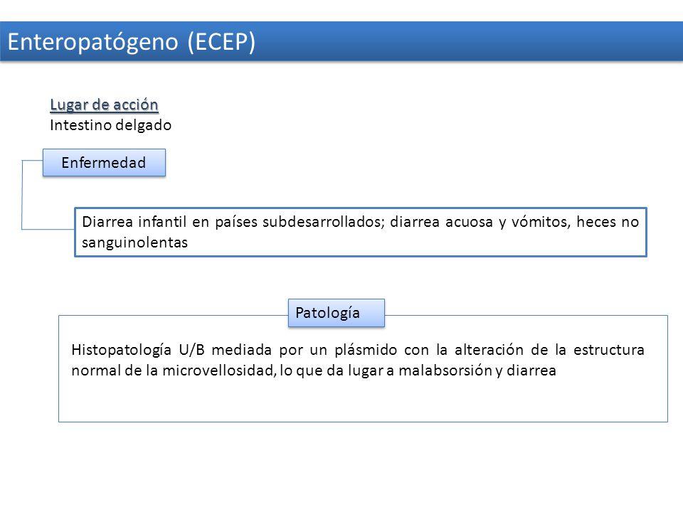 Enteropatógeno (ECEP)