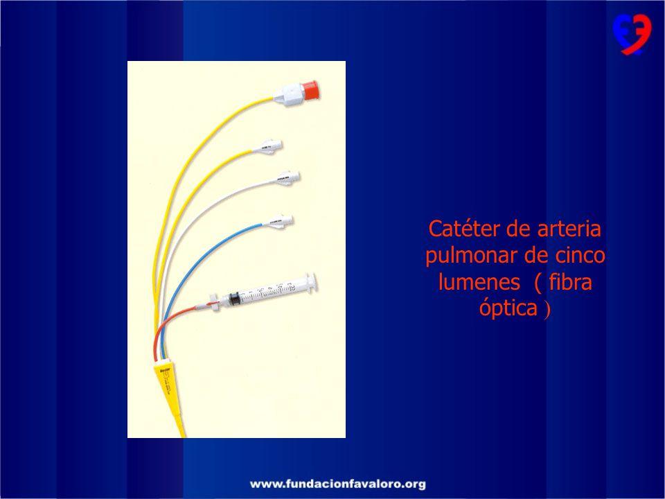 Catéter de arteria pulmonar de cinco lumenes ( fibra óptica )