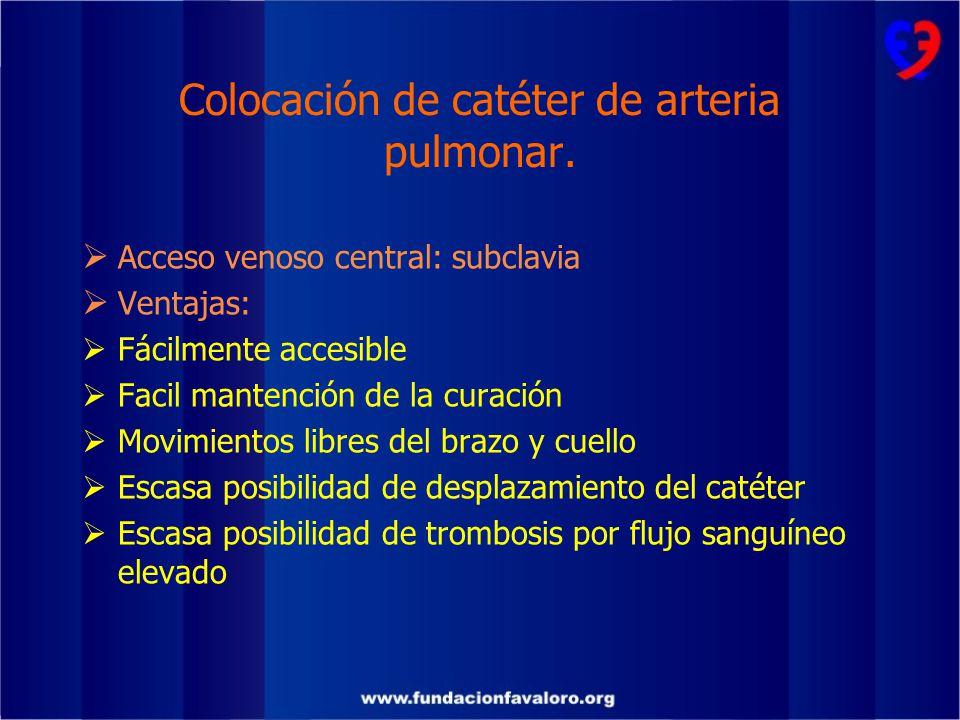 Colocación de catéter de arteria pulmonar.