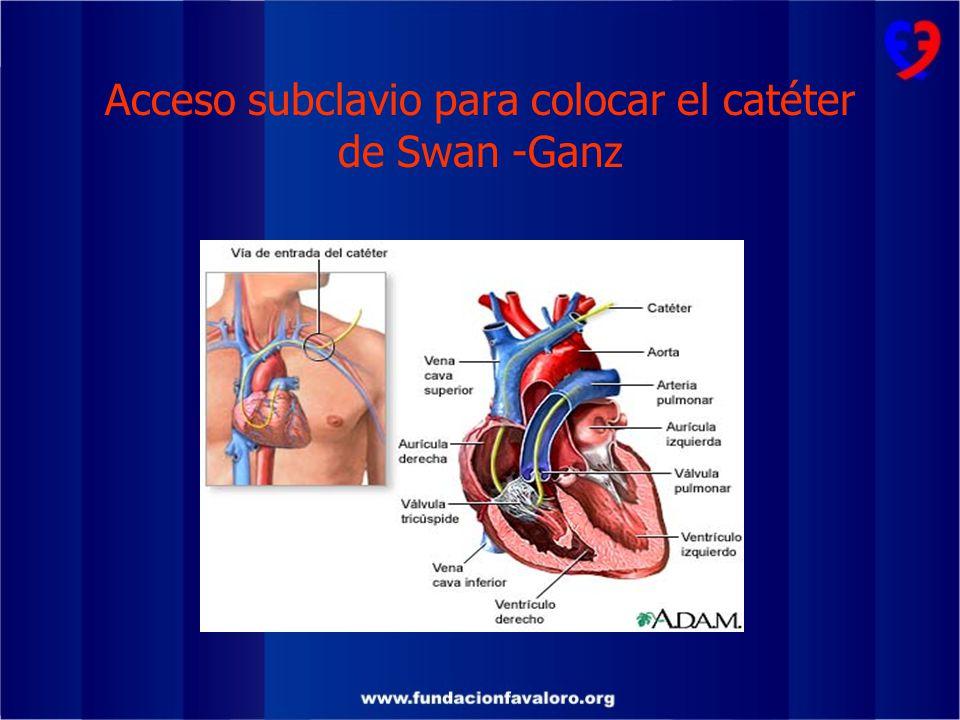 Acceso subclavio para colocar el catéter de Swan -Ganz