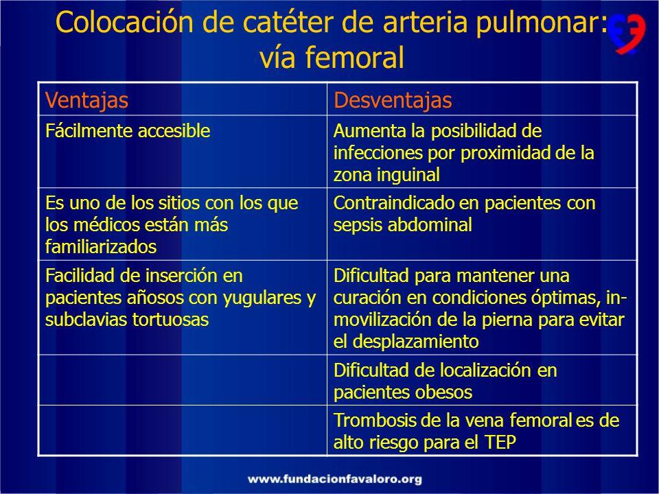 Colocación de catéter de arteria pulmonar: vía femoral