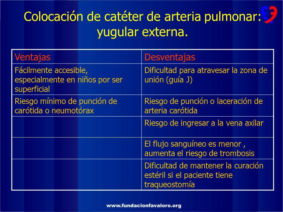 Colocación de catéter de arteria pulmonar: yugular externa.