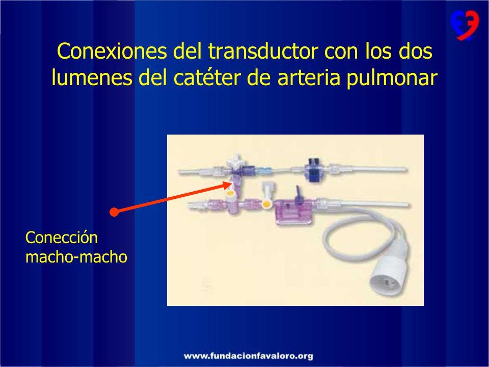 Conexiones del transductor con los dos lumenes del catéter de arteria pulmonar